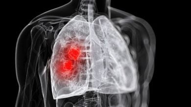 Photo of Experts urge Europe to start planning for lung cancer screening