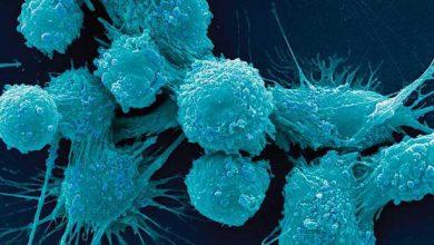 کمبود ویتامین B2 سلولهای سرطانی را در خواب فرو میبرد! - اخبار زیست فناوری