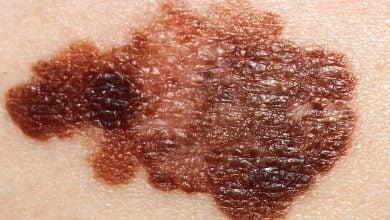 Photo of اثر ژن سرکوبکننده توموری بر روی بقای ملانوما