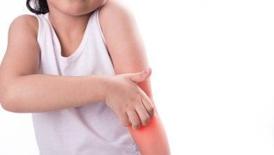 Photo of آنتی بیوتیک موثر بر باکتری های مقاوم به دارو در عفونت های پوستی اطفال