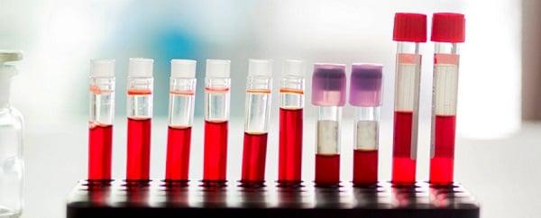 پیش بینی 30 سال زودتر آلزایمر با تست دقیق خونی-زیست فن