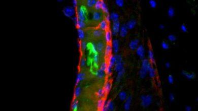 Photo of بررسی NIH کشف سرنخ:چرا داروهای ضد سرطان شایع موجودباعث از دست دادن شنوایی میشنود؟!