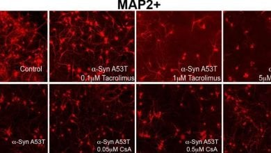 Photo of یافته های جدید به درمان بالقوه بیماری پارکینسون می پردازند