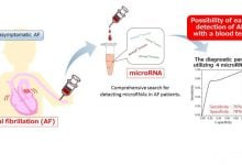 شناسایی نشانگرهای RNA ریتمهای غیر طبیعی قلب – اخبار زیست فناوری