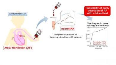 Photo of شناسایی نشانگرهای RNA ریتمهای غیر طبیعی قلب