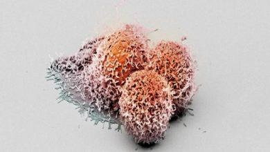 Photo of کشف پروتئین جدید با خاصیت ضدسرطانی
