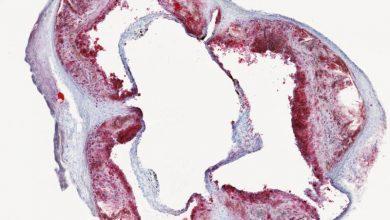 رژیم غربی، کاهنده سلولهای ایمنی محافظت کننده خونی-زیست فن