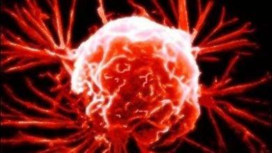آشکار شدنمکانیسمهای جدید در سرطان پروستات توسط پروتئینها