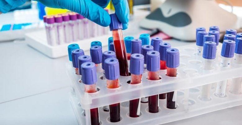 آیا سلولدرمانی میتواند عملکرد مغز در بیماران آلزایمری را بهبود ببخشد-زیست فن