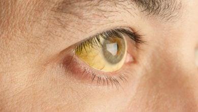 Photo of ضرورت واکسیناسیون در برزیل به علت شیوع تب زرد