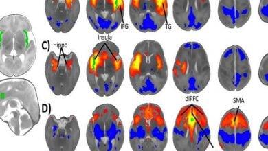 Photo of نقش سیستم ایمنی مادر بر شکلگیری مغز جنین