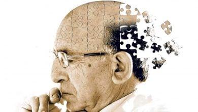 Photo of شکستی دیگر برای داروهای آلزایمر: آیا فرضیه مقابله با آمیلوئید رد میشود؟