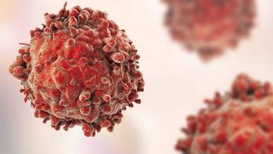 جلوگیری از پیشرفت سرطان پانکراس به کمک ویروس آنفلوانزا - اخبار زیست فناوری