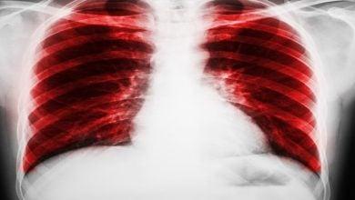 کاهش فیبروز ریوی از طریق بازیابی سنتز لیپید-زیست فن