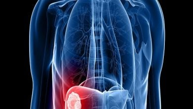 Photo of جلوگیری از متاستاز سرطان کبد با محدود کردن جریان خون تغذیهکننده