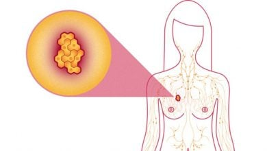Biological factors don't fully explain racial disparities for breast cancer type