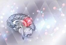 داروهای سرطان برای محافظت از عصب هانتینگتون