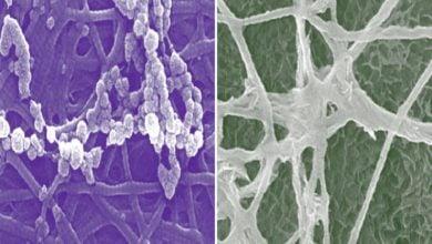 دیدگاههای سلولی جدید در مورد رشد استخوان-زیست فن