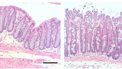 Photo of HIC1 protein may protect against intestinal disease