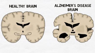مطالعات ژنتیک: کاهش خطر ابتلا به بیماری آلزایمر - اخبار زیست فناوری