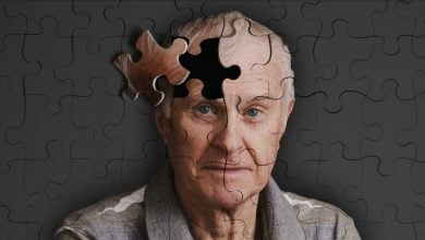 Photo of تعریف آلزایمر توسط بیومارکرها