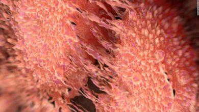 Photo of کشف پاشنهآشیل سرطان