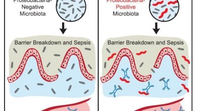 Photo of Gut microbes protect against sepsis: Mouse study