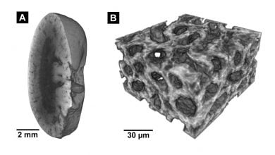 Histology in 3-D: New staining method enables Nano-CT imaging of tissue samples