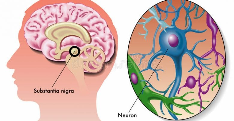 Parkinson's Neuronal Loss Linked to Mitochondrial Membrane Lipid