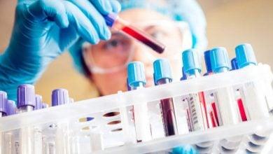 Photo of روشهای نوین برای پیشبینی بهتر سرطان تخمدان توسط شرکت انگلستانی Angle