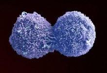 Photo of روشی جدید برای متوقف کردن تقسیم سلولی برای مبارزه با سرطان