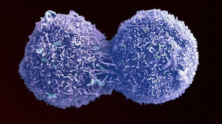 روشی جدید برای متوقف کردن تقسیم سلولی برای مبارزه با سرطان - اخبار زیست فناوری