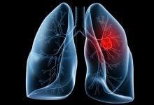 دستیابی به یک نقطه عطف در مقابله با سرطان ریه - اخبار زیست فناوری