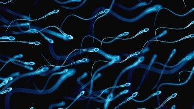 تولید اسپرم در مردان مبتلا به سرطان بیضه-زیست فن