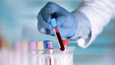 آیا آزمایش خون میتواند موجب حذف سرطان ریه شود؟ – اخبار زیست فناوری