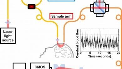 Photo of تکنولوژی جدید اندازه گیری جریان خون مغزی