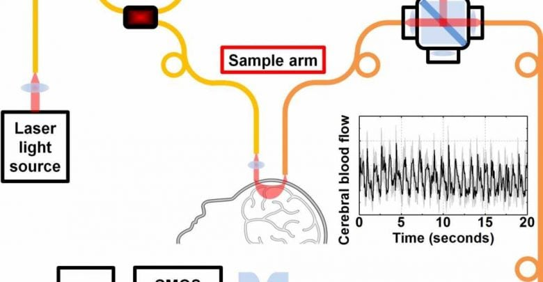 تکنولوژی جدید اندازه گیری جریان خون مغزی