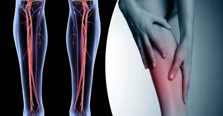 Varicose veins tied to higher odds for blood clots