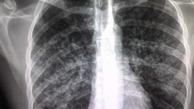 Photo of Beyond killing tuberculosis