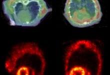 تجمع پروتئینی در بیماریهای قلبی