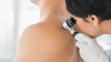 Photo of تشخیص زودهنگام سرطان با تاتوی بیومدیکال