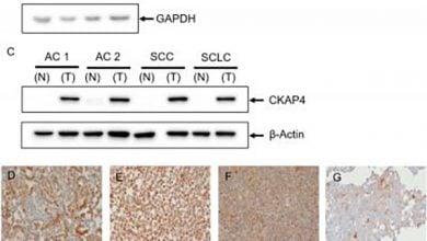 Photo of تشخیص سرطان ریه و نشانگرهای زیستی