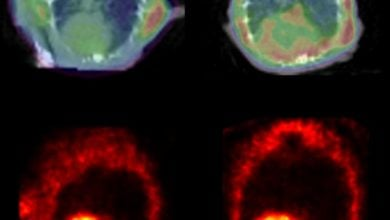 Photo of Alzheimer's-Like Clumping Proteins Found in Diseased Hearts