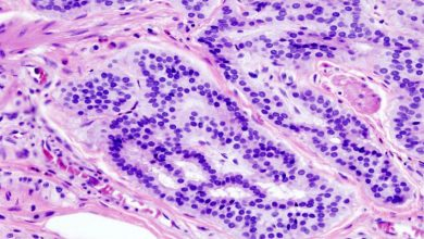Photo of Colorectal cancer-combined analysis enhances risk prediction