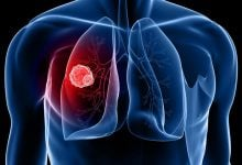 Photo of Lung Cancer Biomarker Discovery Raises Hopes for Early Detection