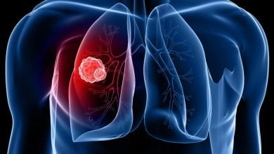 Lung Cancer Biomarker Discovery Raises Hopes for Early Detection