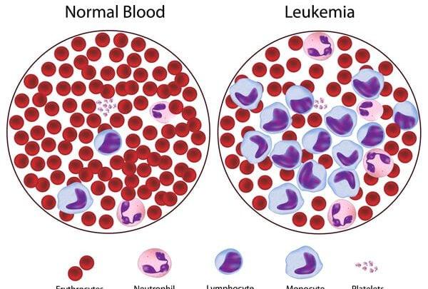 روش جدید بهبود سرطان نوع T