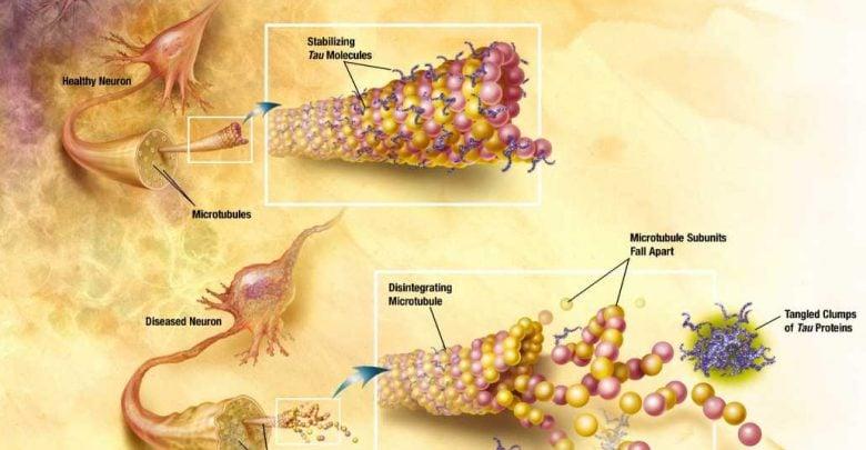 محققان دریافتند ارتباطی بین کلسترول و آلزایمر وجود دارد