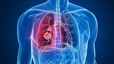 بیومارکرهای جدید برای تشخیص زودهنگام سرطان ریه