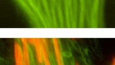 Photo of شناسایی پروتئین کلیدی در مونتاژ دم اسپرم